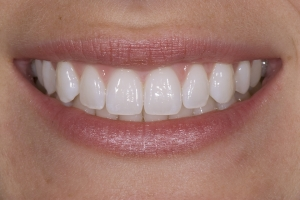 Elisabeth Laser Teeth Whitening S Post 0001