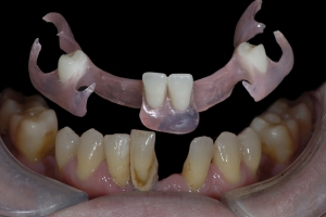 Elizabeth Implant Temporary X2 7325
