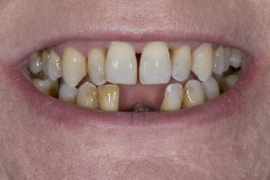 Elizabeth Implant Temporary X Partial 8241