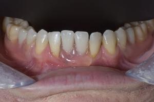 Elizabeth Implant Temporary X3 8247