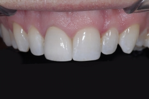 Eric X3 Grey Tooth Crown After 4300