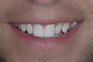 Eric S Grey Tooth Crown After 4271