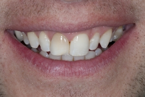 Eric S Grey Tooth Crown  Before 3921