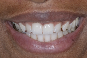 Erica Teeth Stains S Post 0118 2