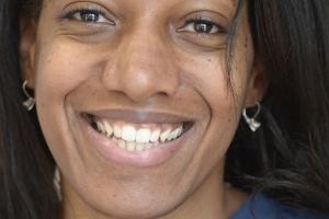 Erica Teeth StainsF Post 6372 copy