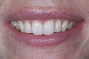 Erin Teeth Whitening S Post 4164