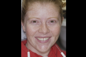 Erin Teeth Whitening F B4 0600