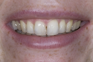Erin Teeth Whitening S B3 0598