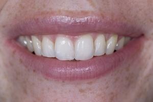 Erin Teeth Whitening S Post 4164