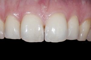 Erin Teeth Whitening X121 B4 0604 2