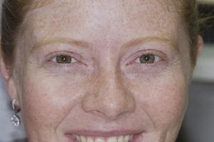 Erin Teeth Whitening F2  Before 0600