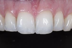 Erin Teeth Whitening X121 Post 4173