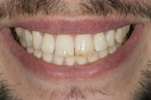 Garth S Diastema  Before 0005