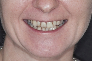 Gina Veneers & Orthodontics F  Before 3468 copy