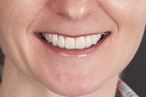 Gina Veneers & Orthodontics F post 6782 copy 2