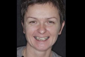Gina Veneers & Orthodontics F  Before 3468