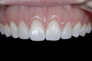Gina Clear Aligners Z6 9718