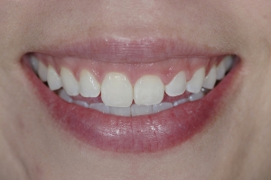 Gina Clear Aligners S B4 _4KL6833