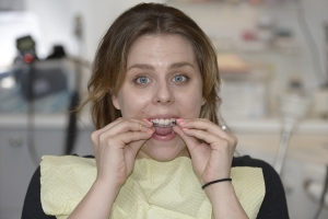 Gina Clear Aligners Z1 9513