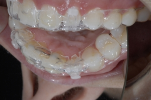Gina Clear Aligners Z4 6914
