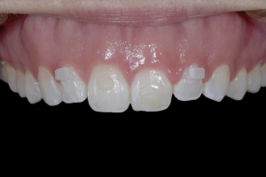 Gina Clear Aligners Z5  6918