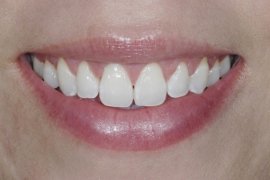 Gina Veneers As Retainers S B4 7382