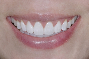 Gina Veneers As Retainers S Post 7401