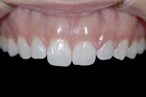 Gina Gummy Smile X1  Before 6850