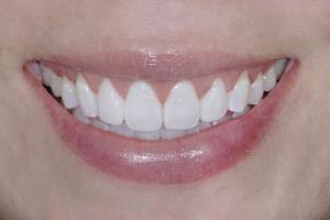 Gina Gummy Smile S After  9713 (1)