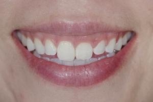 Gina Gummy Smile S  Before 6833