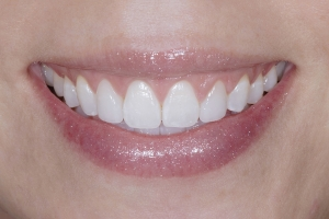 Gina Veneers & Gum Lift S Post 9713