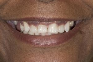 Giselle Gummy Smile S  Befpre 0141