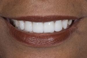 Giselle Gummy Smile S After 0011
