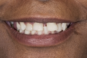 Giselle Invisalign S  Before 0040
