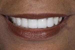 Giselle Invisalign S After 011