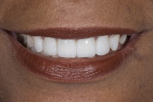 Giselle Veneers & Gum Lift S After 0011