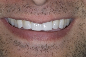Greg Invisalign S Post 6180 (1)