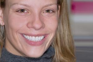 Gretchen Teeth Whitening F Post