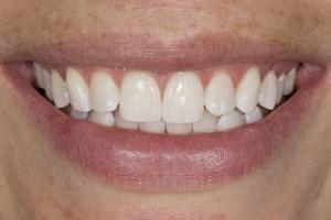 Gretchen Teeth Whitening S B4 0039