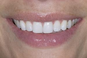 Gretchen Teeth Whitening S Post 0023 (1)