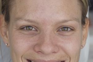 Gretchen Teeth Whitening F  before 0037