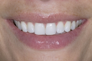 Gretchen Teeth Whitening S Post 0023