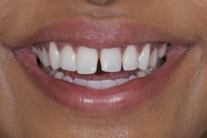 Grishma S Diastema  Before 9979