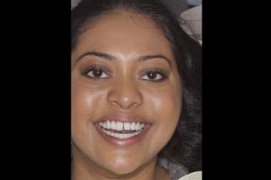 Grishma Instant Orthodontics F B4  9986