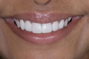Grishma Instant Orthodontics S Post 2096