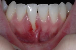 Hannah  Laser Frenectomy X1 6357