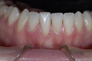 Hannah Laser Frenectomy X4 8345