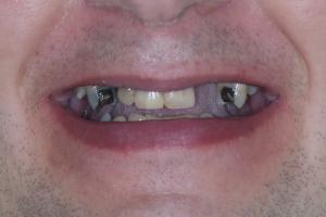 Harley Implant Temporary S B4 X Mock Up_DSC2903