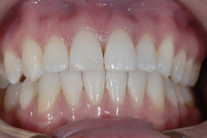 Isabella Clear Aligners Lower Pushing Upper Space Open 5970