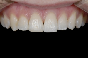 Isabella Clear Aligners S  Before 5971